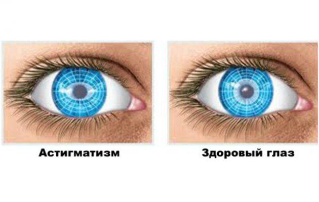 Scădere în greutate și probleme oculare, Ochiul si bolile glandei tiroide | Clinica Novaoptic