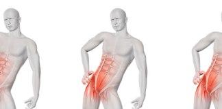 """O nome é diferente – bursite trocantérica – mas essa condição pode afetar 15% das mulheres e 8,5% dos homens adultos em qualquer idade, levando à dores incapacitantes na região dos quadris. A bursite nos quadris está ligada aos esforços repetitivos impostos por alguns esportes, como a corrida e o ciclismo, assim como ao encurtamento dos músculos da região lateral do quadril e das coxas. Segundo a fisioterapeuta Walkiria Brunetti, há outros fatores ligados à bursite trocantérica. """"A escoliose, o comprimento desigual de uma das pernas, músculos enfraquecidos, artrite reumatoide e depósitos de cálcio e hiperuricemia (ácido úrico elevado) também são fatores de risco, assim como traumas ou cirurgias na região dos quadris"""". A bursa é uma espécie de saco que contém uma substância gelatinosa. """"As bursas estão presentes nas articulações do corpo humano, incluindo os quadris. A principal função é amortecer o impacto entre os ossos e os demais tecidos. A bursite nos quadris acontece quando as bursas trocantéricas, localizadas no trocânter maior (parte superior do fêmur) inflamam"""", comenta a especialista. Dor e inchaço são principais sintomas A dor e o inchaço são as principais manifestações clínicas da bursite. """"A dor da bursite é bem característica. Ela costuma piorar ao subir escadas, levantar-se de uma cadeira, cruzar as pernas, caminhar, depois de ficar longos períodos de pé. À noite, se a pessoa se deitar de lado sob o quadril afetado, a dor pode ser ainda mais intensa"""", comenta Walkiria. Pressão no local pode revelar a bursite O diagnóstico é feito pelo médico ortopedista, que ao pressionar os quadris no exame físico já poderá suspeitar da bursite. A confirmação é feita por meio de exames de imagem, como o ultrassom e a ressonância magnética. Alívio da dor é o primeiro passo O tratamento incialmente, é conservador, ou seja, feito com fisioterapia e medicamentos anti-inflamatórios. As compressas de gelo são recomendadas para reduzir a inflamação. Além disso, o fisioterape"""