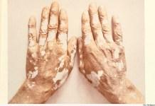 O vitiligo causa a despigmentação da pele