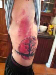 common muay thai injuries bruised ribs