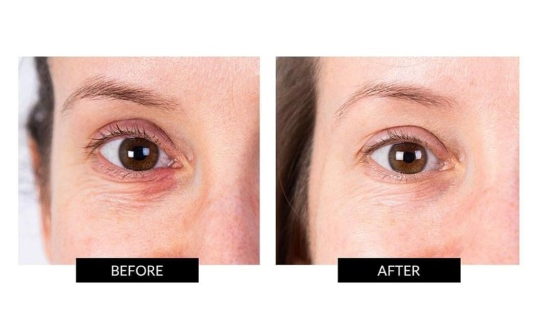 NIRA Skincare Laser Before and After Image 2