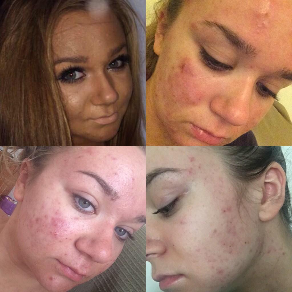 my-acne