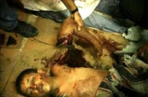 palestinian_child_armcutoff-holocaust.jpg