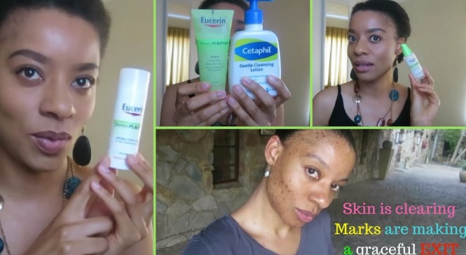 Acne Skin Care Product Review (Eucerine Neutrogena Cetahpil)| Swazi YouTuber in SA|