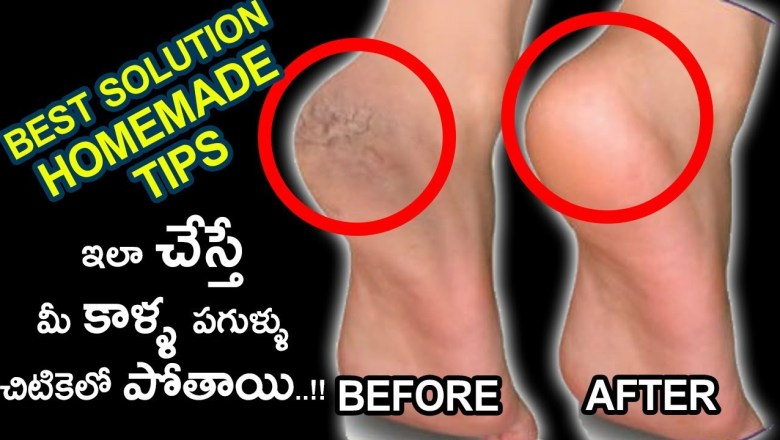 Quick Solution For Cracked Heels | Homemade Health Tip Recipes | Gold Star Health