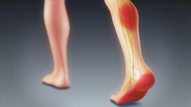 le nerf sciatique passe par le mollet et fini sur le dos du pied