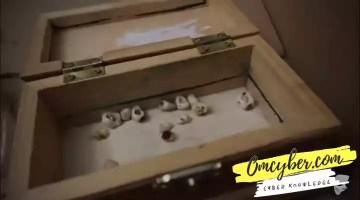 Kotak yang berisi gigi manusia