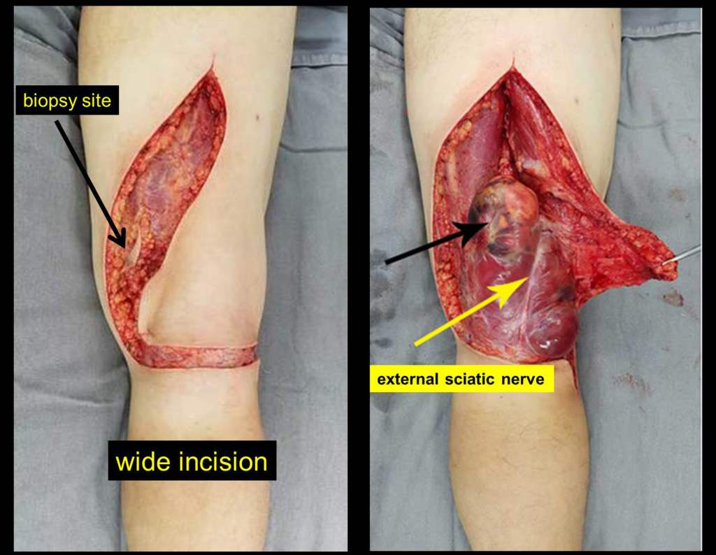 acesso-posterior-joelho