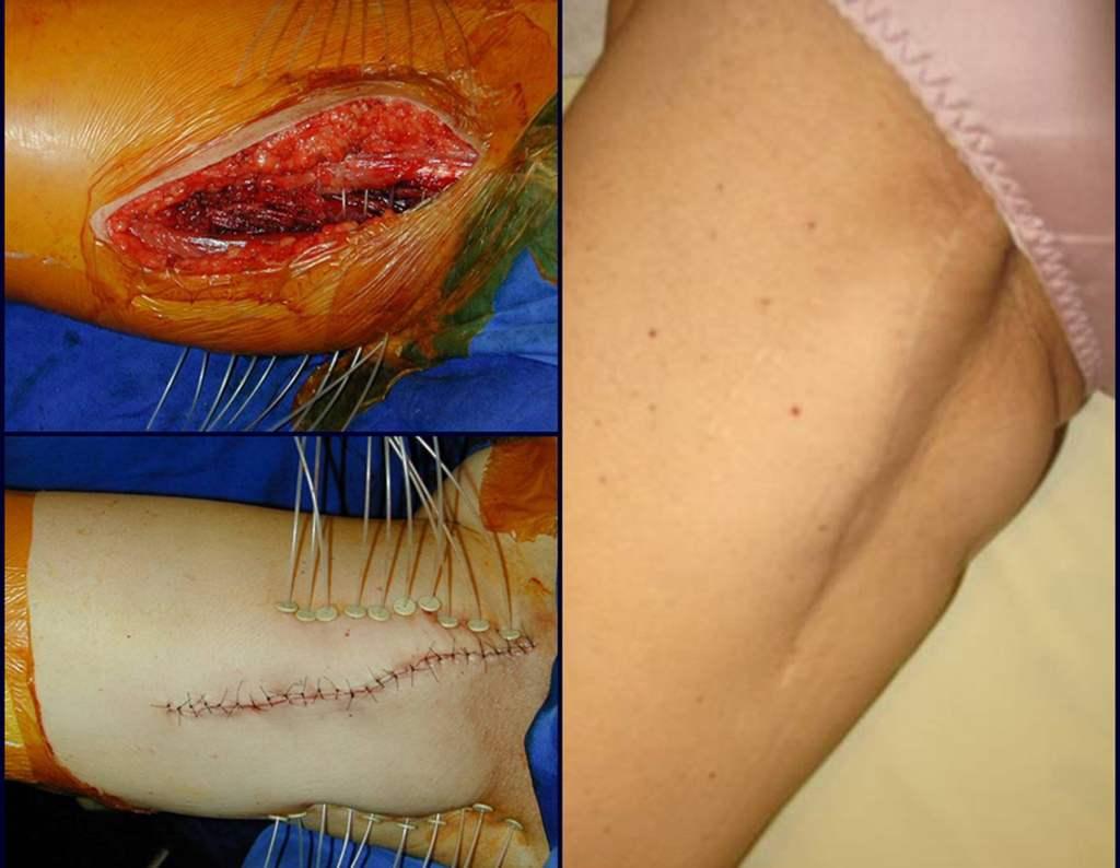 sarcoma-cirurgia-oncologica-braquiterapia