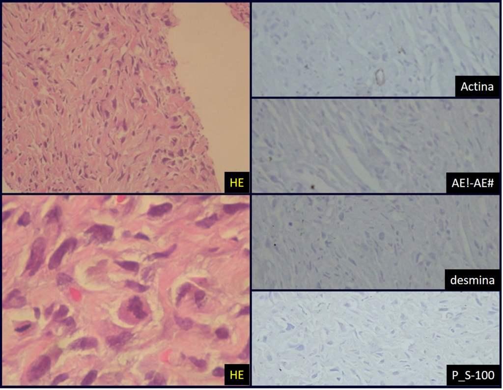 sarcoma-tecidos-moles-histologia