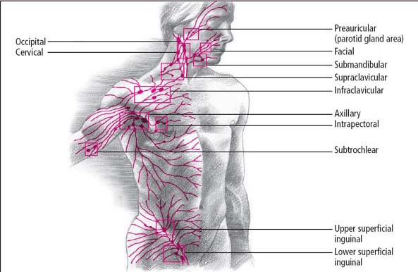Lymphangitis   Oncohema Key