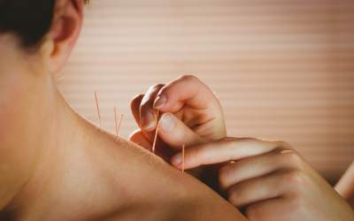 5 Benefits of Acupuncture in Cancer Care