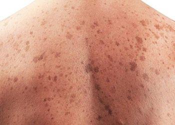 """Los hombres """"en general se protegen menos del sol"""" y le """"prestan menos atención a las advertencias de salud pública""""."""