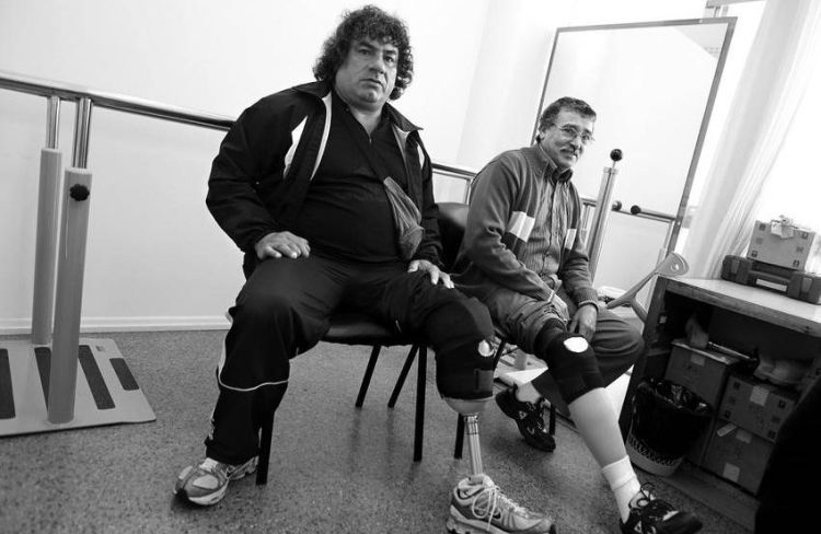 Pacientes uruguayos con prótesis colocadas por el convenio entre Uruguay y Cuba. Foto: ladiaria.com.uy