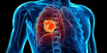 El cáncer de pulmón es el que más afecta a hombres y mujeres en Cuba. Foto: mayoclinic.org