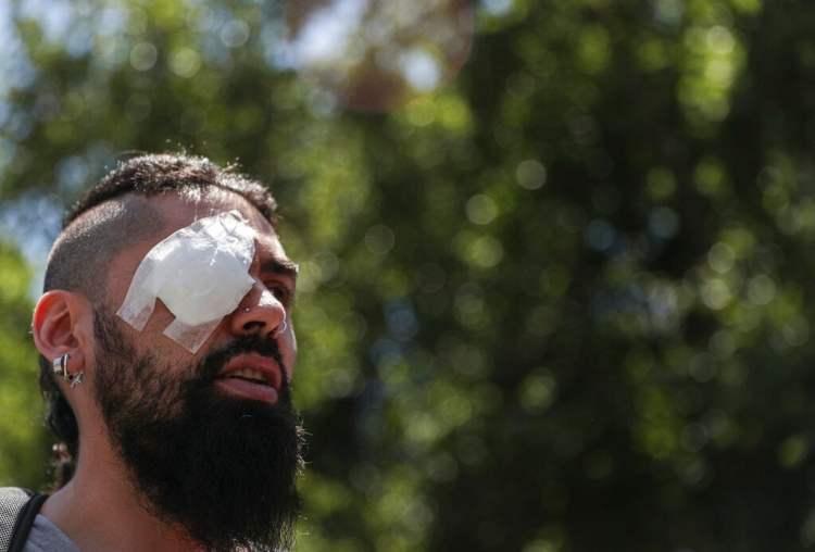 Marcelo Herrera, con los ojos vendados por una lesión que sufrió durante una protesta reciente, participa en una manifestación en Santiago, Chile, el jueves 28 de noviembre de 2019. Foto: Esteban Felix / AP.