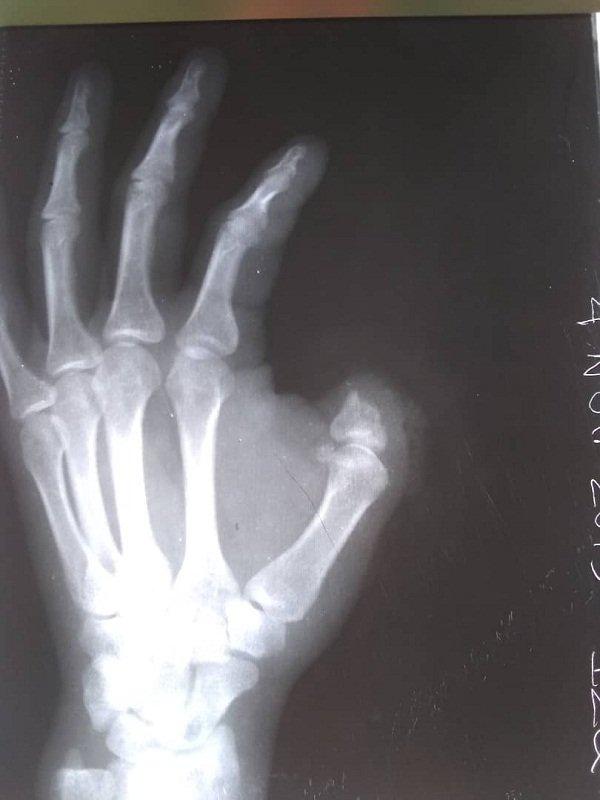 Radiología de la mano izquierda de Ahmed Campuzano sin su dedo pulgar. Foto: Juventud Rebelde.