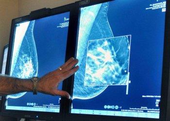 Imagen de archivo que muestra una prueba de detección de cáncer de mama. Foto: Torin Halsey/Times Record News vía AP/Archivo.