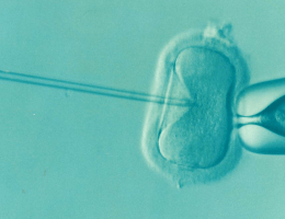 6 Things You Should Know Before IVF