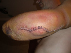 Elbow After Surgery