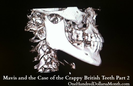 Mavis and the Case of the Crappy British Teeth Part 2