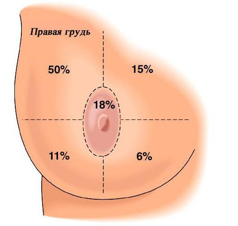 Рак молочной железы (груди): причины, симптомы, диагностика, лечение и прогноз. Что такое рак молочной железы, как его лечить, классификация и стадии