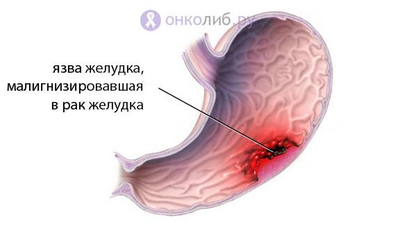 Малигнизация озлокачествление: язвы, полипа, невуса