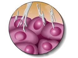 Мезотелиома плевры симптомы