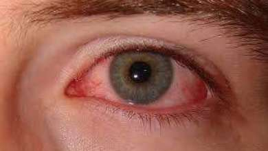 Photo of Humans Rare Common Eye Diseases List with Pictures