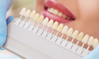 Get a sparkling smile with Teeth Whitening Process