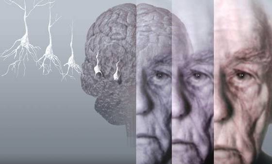6 Conditions That Are Connected With Alzheimer's Disease