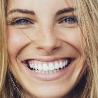 What Is Malocclusion and How to Treat It