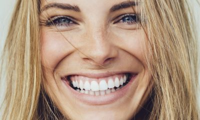 What Is Malocclusion and How to Treat It 1