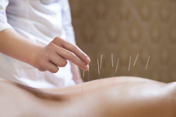 akupunktur scaled