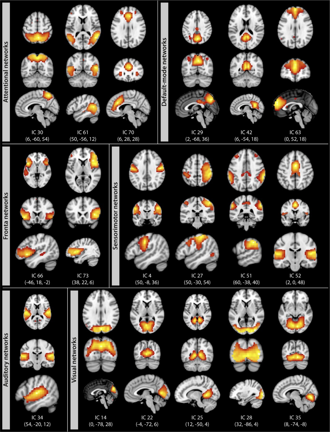 Higher Body Mass Index Is Associated With Reduced Posterior Default Mode Connectivity In Older Adults Beyer 2017 Human Brain Mapping Wiley Online Library