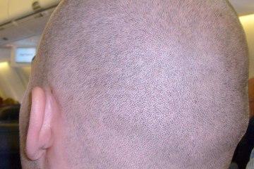 glatze-pflege