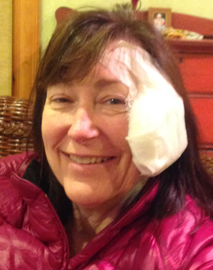 Kathy Broke Her Face – On Pasture