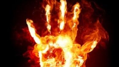 أب يحرق ابنته بالفرن في تونس