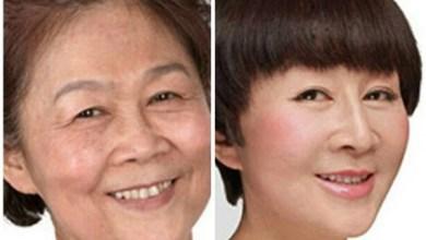 عمليات التجميل في كوريا