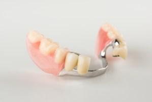 将来の補綴物(ブリッジや部分入れ歯)が良い状態で使用できる