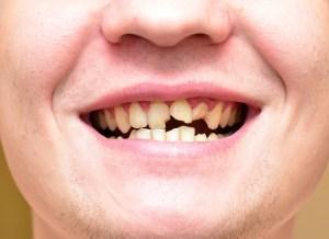 前歯を損傷しやすい