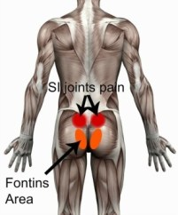 SI-pain-and-fontins-area