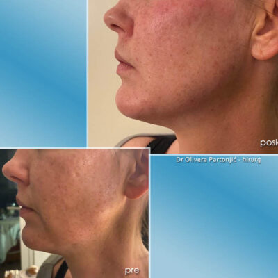 face remodeling with fillers