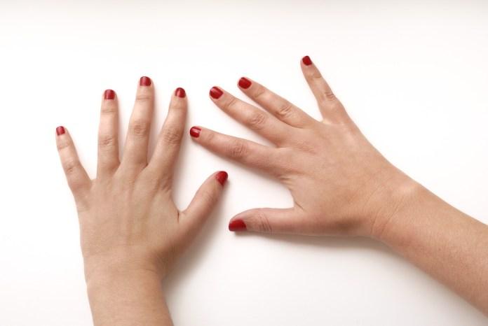Como tratar a artrite