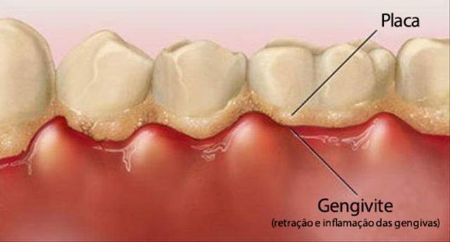 Placa dentes