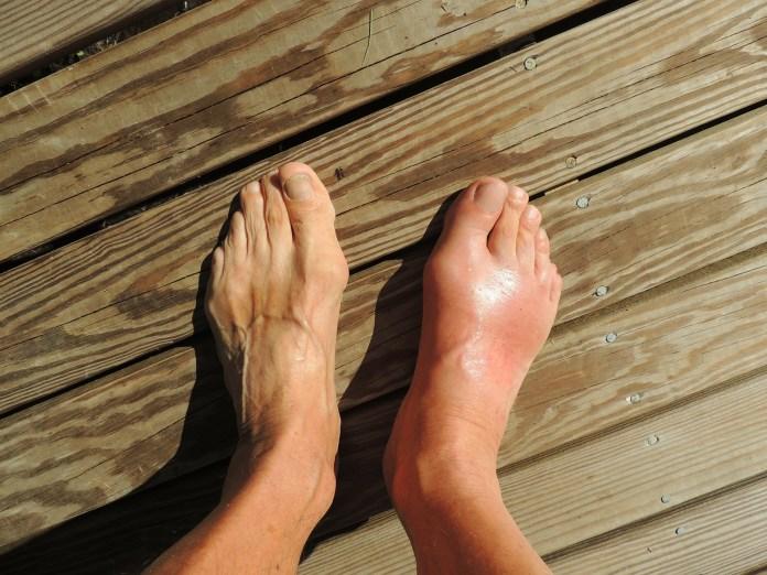 Gota nos pés