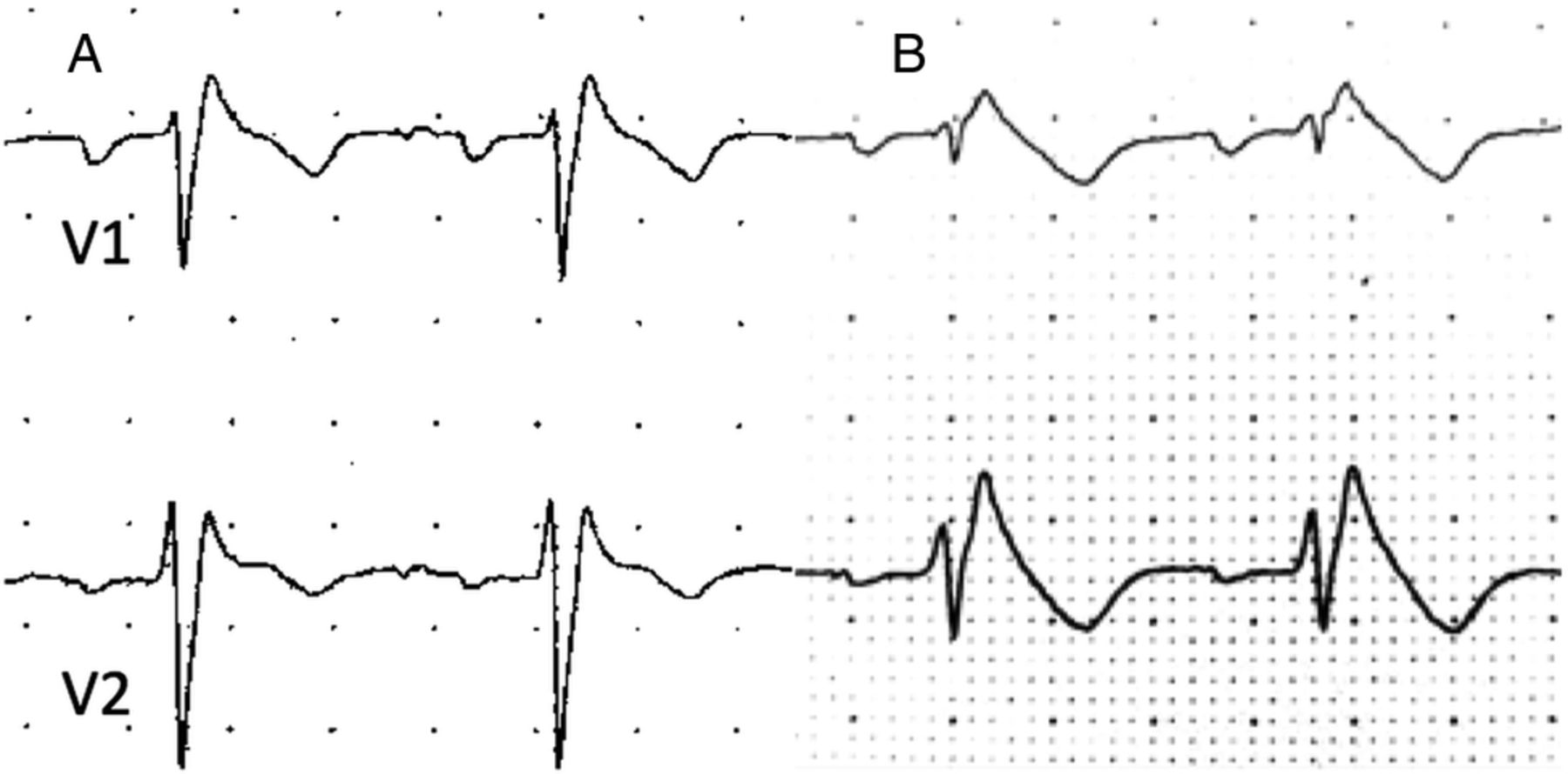 Feasibility And Outcomes Of Ajmaline Provocation Testing For Brugada Syndrome In Children In A