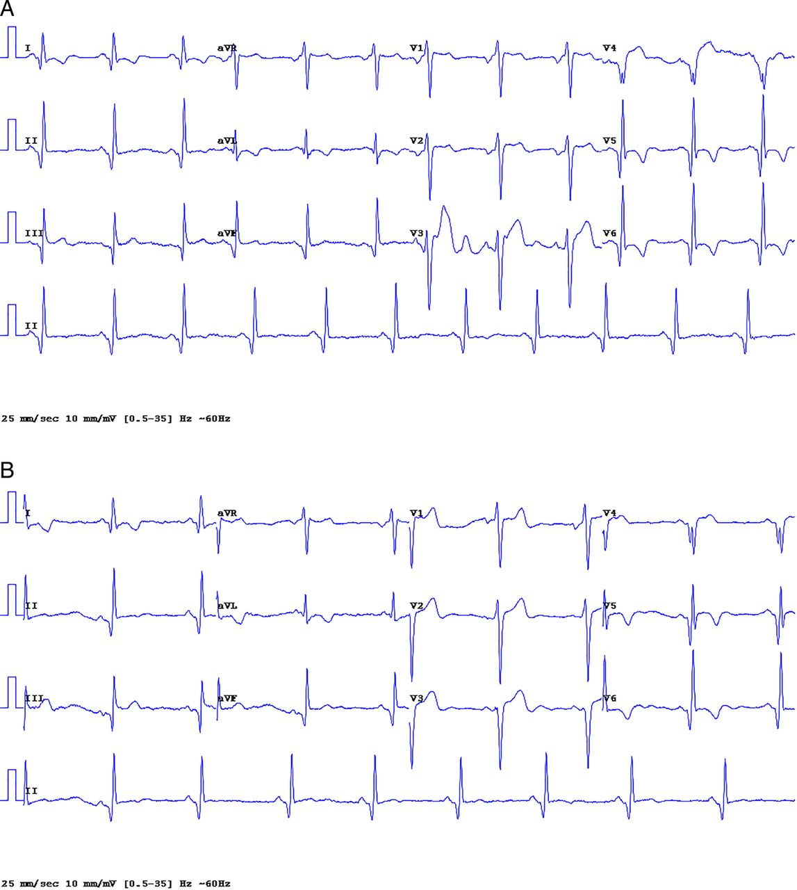 A New Electrode Placement Method For Obtaining 12 Lead Ecgs
