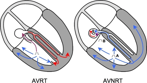 Entrainment Of Orthodromic Avrt Is Depicted In The Left