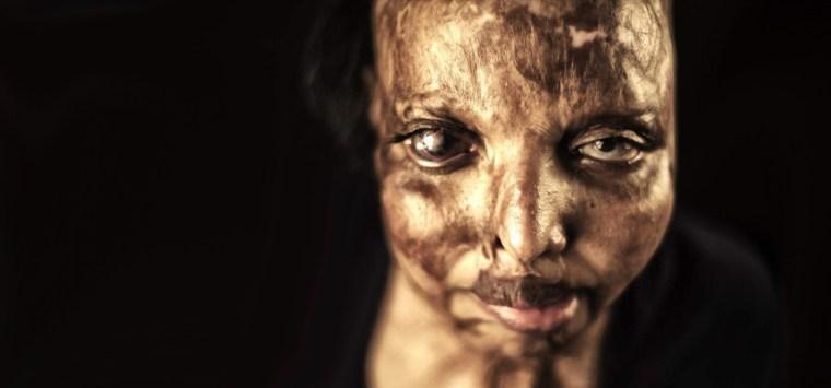 Acid Attack Survivor Pramodini